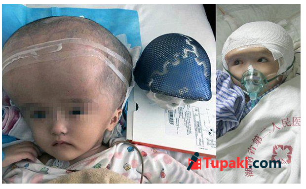 Chinese Girl Becomes World First To Receive Full Skull Reconstruction Via 3D Printing