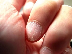 Changes in the fingernails also occur due to the corona effect