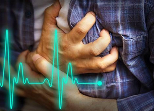 Survey On heart attack