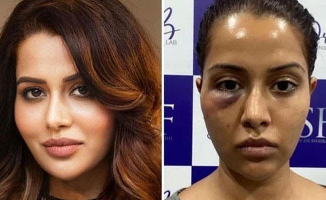 Doctor Has damaged Heroine face
